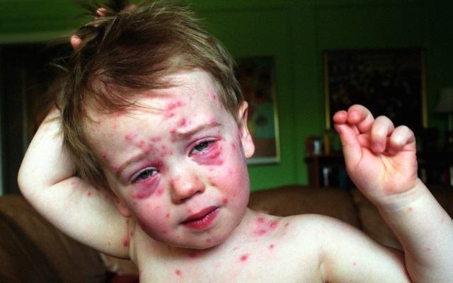 Возможные осложнения и последствия скарлатины у детей