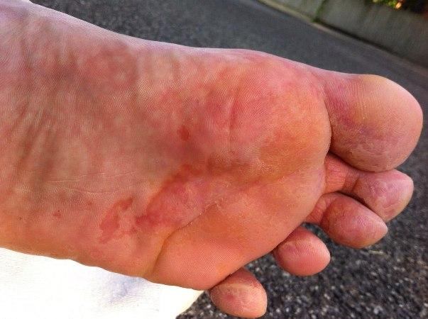 Потница на ногах: механизм развития, симптомы, народная медицина