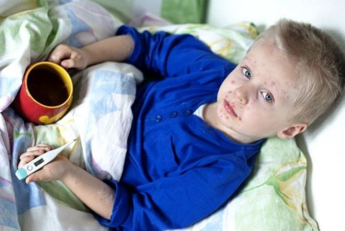 Пузырчатка у детей: причины, факторы, лечение