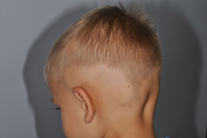 Алопеция у детей - причины, симптомы, лечение