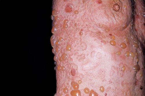 Дерматоз: симптомы и лечение, фото, диагностика и разновидности повреждений