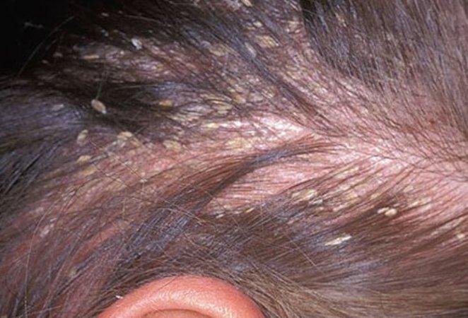 Лишай на голове: симптомы, причины, лечение
