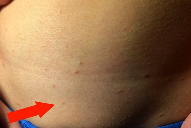 Сыпь на животе - разновидности, возможные заболевания