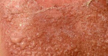 Зуд после солнечного ожога: причины, симптомы, лечение и профилактика