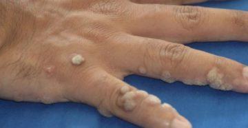 Как избавиться от бородавок: причины, диагностика и методы лечения