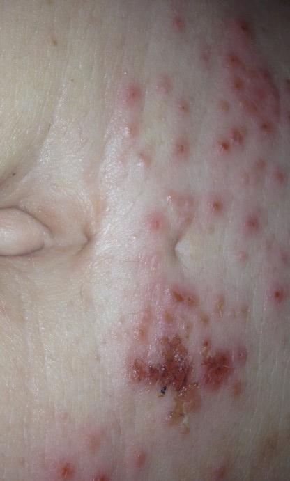 Сыпь на животе у взрослого человека: причины, симптомы, диагностика и лечение