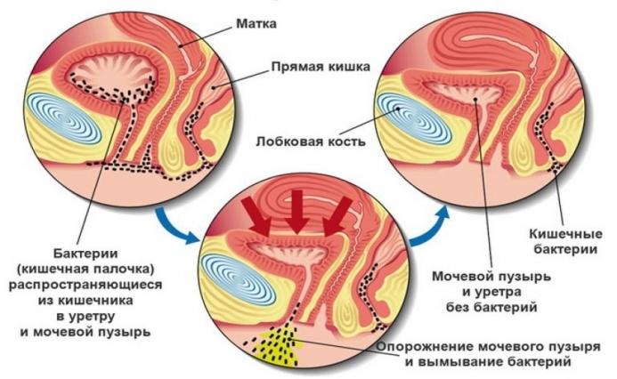 Зуд после секса: причины, симптомы, лечение и профилактика