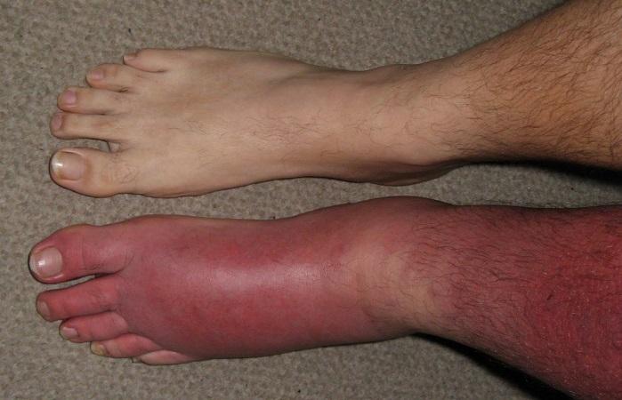 рожистое воспаление ноги симптомы и лечение