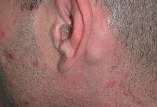 Симптомы сифилиса у мужчин: рекоммендации, диагностика, лечение