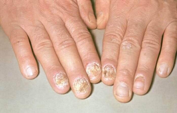 Псориаз начальная стадия симптомы фото и лечение