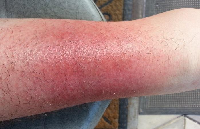Если не лечить рожистое воспаление ноги в домашних условиях 700