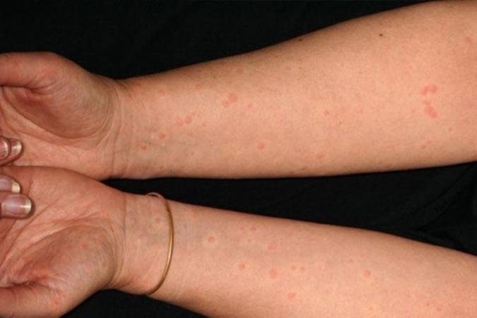 Холинергическая крапивница – причины появления, симптомы