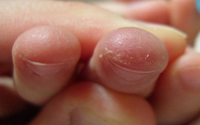 Эксфолиативный дерматит – проявления, методы устранения