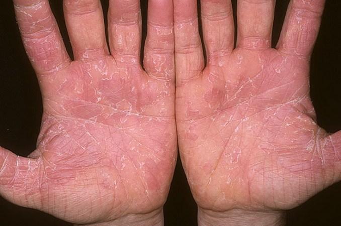 Эксфолиативный дерматит
