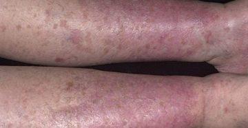 Дерматит на ногах - симптомы, диагностика, лечение и профилактика