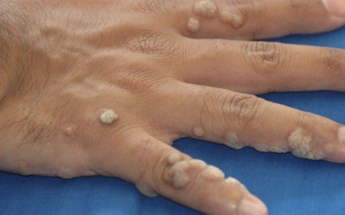 Бородавки на руках - признаки, диагностика, лечение и профилактика