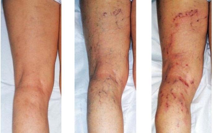Варикозный дерматит - симптомы, диагностика, лечение и профилактика
