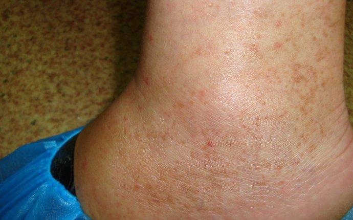 Болезнь Шамберга – причины, симптомы, диагностика и лечение
