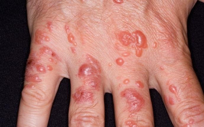 Буллезный дерматит - симптомы, диагностика, лечение и профилактика